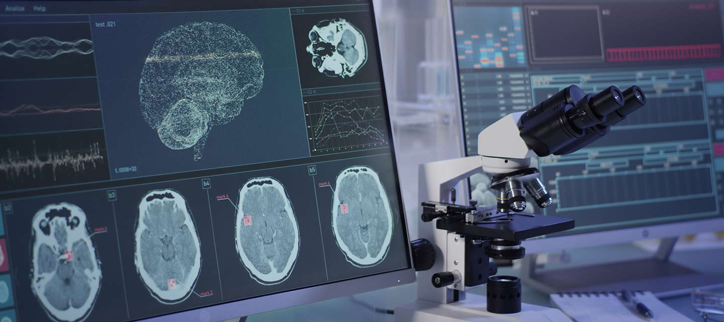 Microscope and computer with brain tumor scans