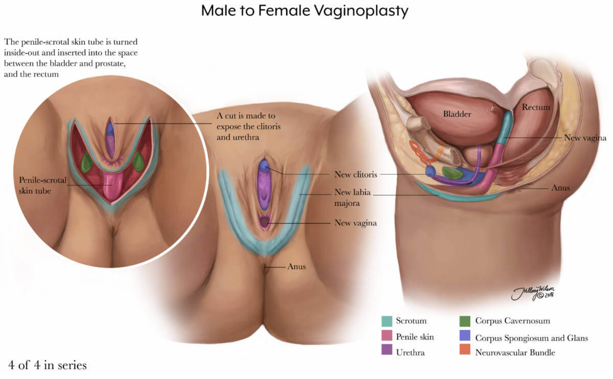A diagram detailing male to female vaginoplasty.