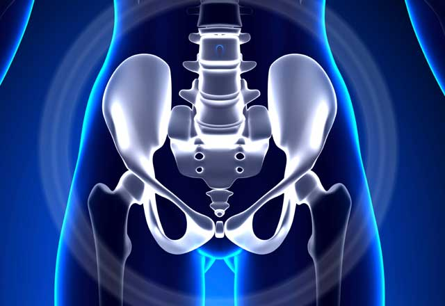 Illustration of pelvic bone xray