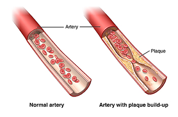Normal artery and artery with plaque buildup