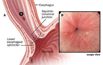 A: Lower esophageal sphincter and squamocolumnar junction; B: Endoscopic view