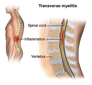 Illustation showing inflammation in lumbar region of the spine due to transverse myelitis