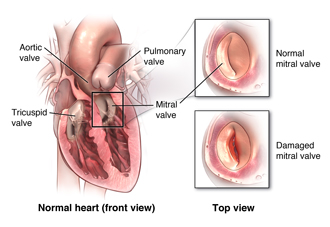 A normal and damaged mitral valve