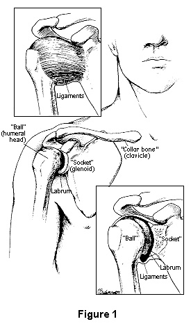 Diagram showing where shoulder instability occurs