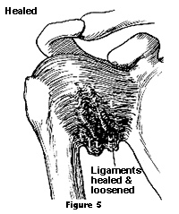 Diagram showing ligaments healed and loosened