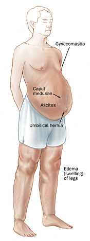 Signs of portal hypertension, including gynecomastia, caput medusae, ascites, umbilical hernia, and swelling of the legs.