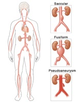 Illustration of the different types of aortic aneurysm