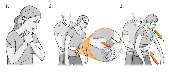 Illustration showing a woman choking, a man grabbing her around her stomach from behind, and using his fist and hand to perform the choking rescue technique.