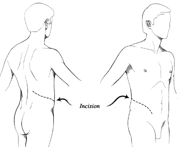 Diagram of open surgery incision across the abdomen