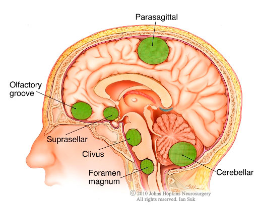 Diagram showing where certain meningiomas are located