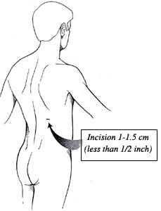 Diagram showing one small incision on the midback