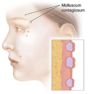 Side view of woman's face showing molluscum contagiosum. Inset shows cross section of molluscum contagiosum.