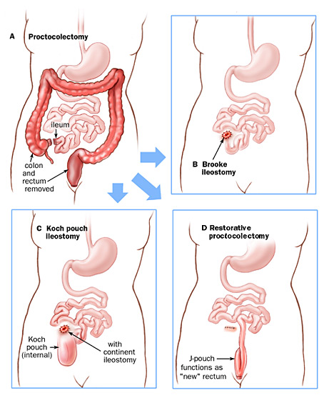 Surgical options for the treatment of ulcerative colitis; A: proctocolectomy; B: Brooke ileostomy; C: Koch pouch ileostomy; D: restorative proctocolectomy.