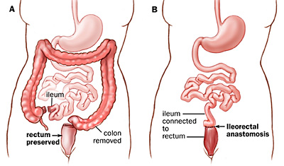 Technique for colectomy with ileorectal anastomosis (Click to Enlarge)