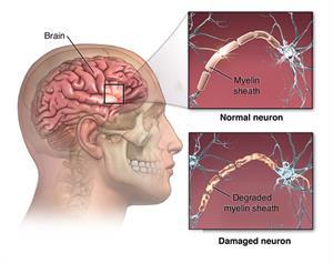 نحوه تخریب استارتاپ سلولهای عصبی در بیماریNeuromyelitis Optica