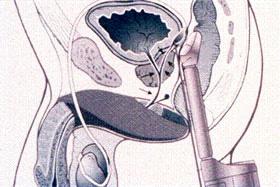 Transrektal ultrason diyagramı