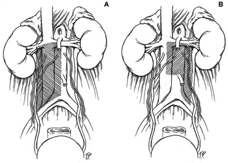 Illustration of two different dissection methods