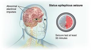 Status Epilepticus | Johns Hopkins Medicine