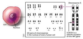 Apc I1370k And Colorectal Cancer Johns Hopkins Medicine
