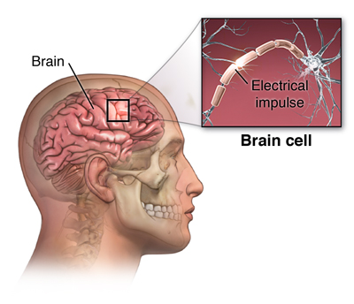 Evaluation of a First-Time Seizure | Johns Hopkins Medicine