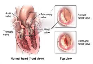Heart Valve Repair or Replacement Surgery | Johns Hopkins