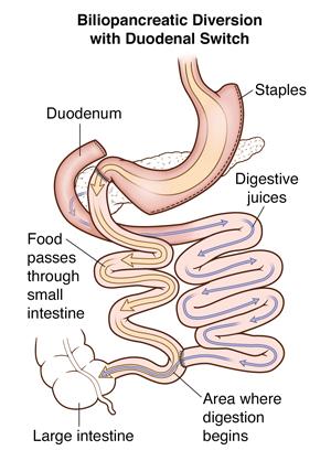 BPD/DS Weight-Loss Surgery | Johns Hopkins Medicine
