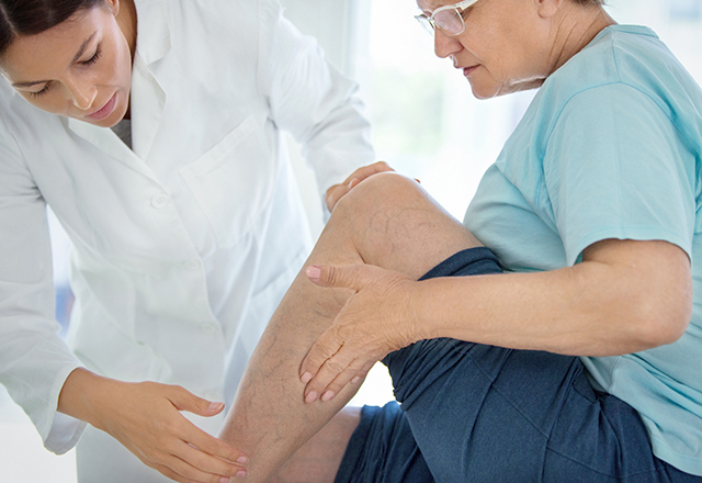 doctor examining mature woman's varicose veins - vascular surgery and endovascular therapy