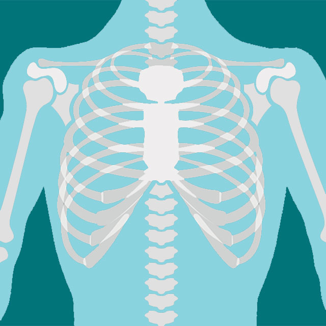 chest and arm x-ray illustration