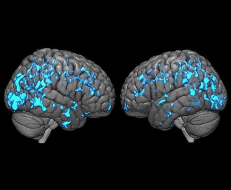 PET scans showing brain activity