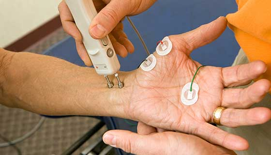 Patient with electrodes on the palm of their hand to measure nerve function