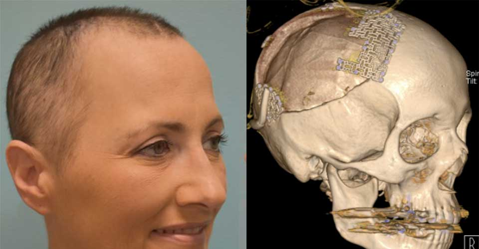 Before and after of a skull tumor resection
