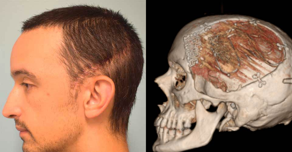 Before and after of combined cranioplasty and neuromodulation device insertion