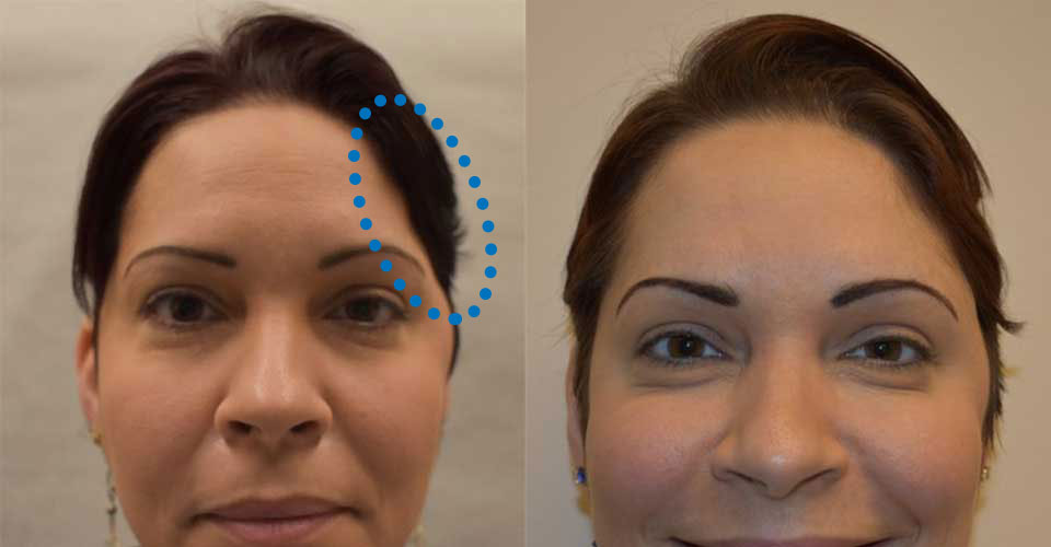 Before and after of a neuroplastic reconstruction and cranioplasty