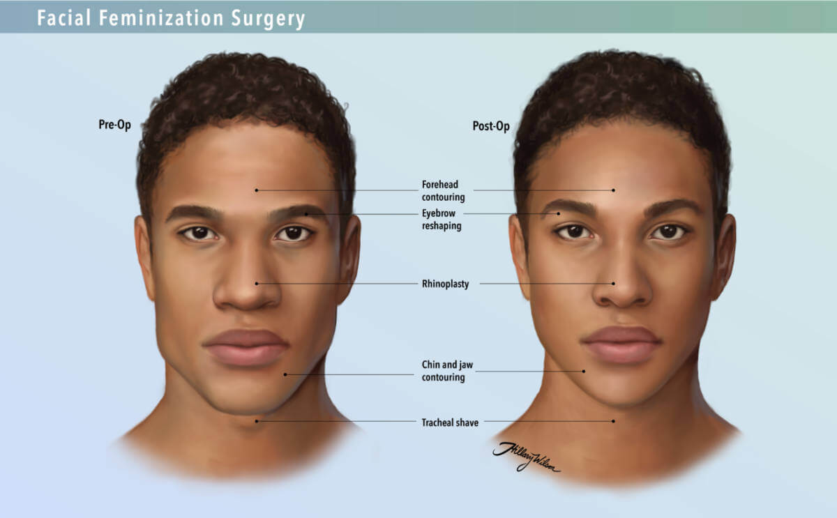 comparison of pre- and post-op facial features