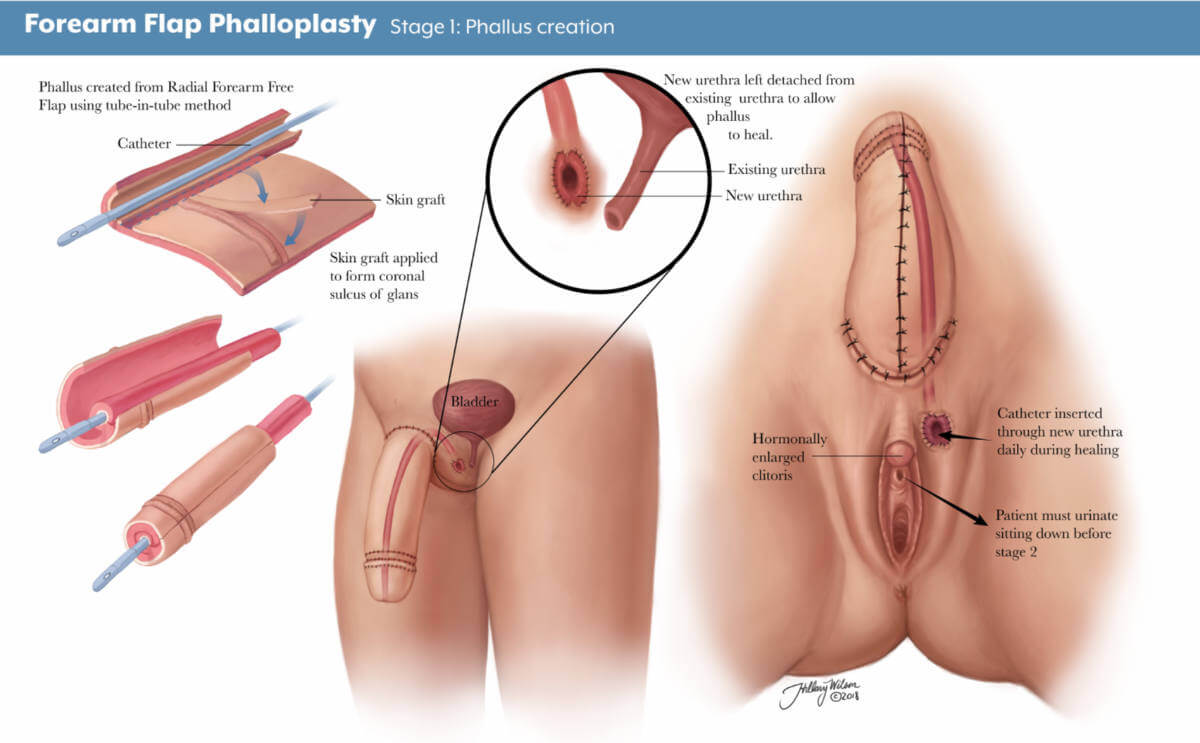 annotated illustration of forearm flap phalloplasty, stage 1