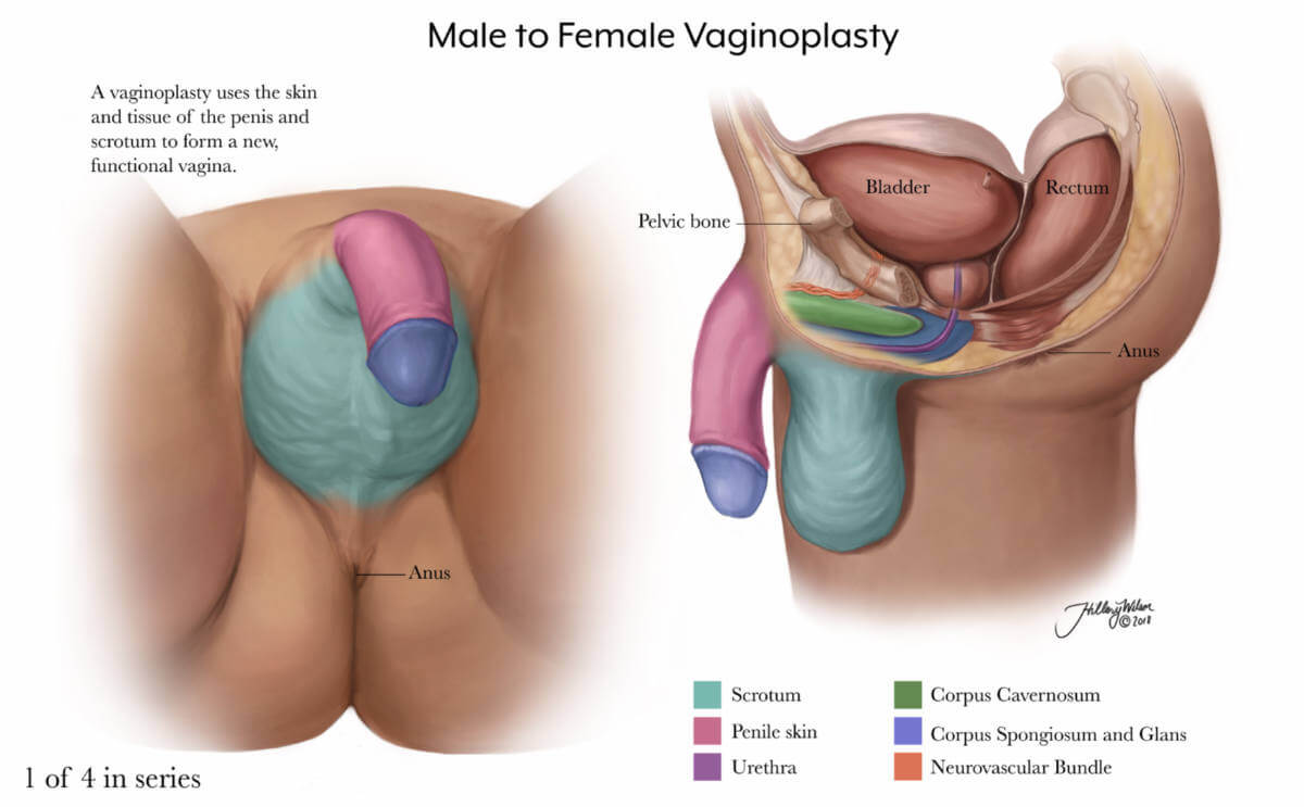 annotated illustration of male to female vaginoplasty, part 1
