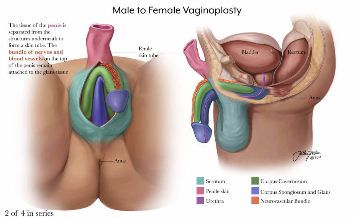 annotated illustration of male to female vaginoplasty, part 2