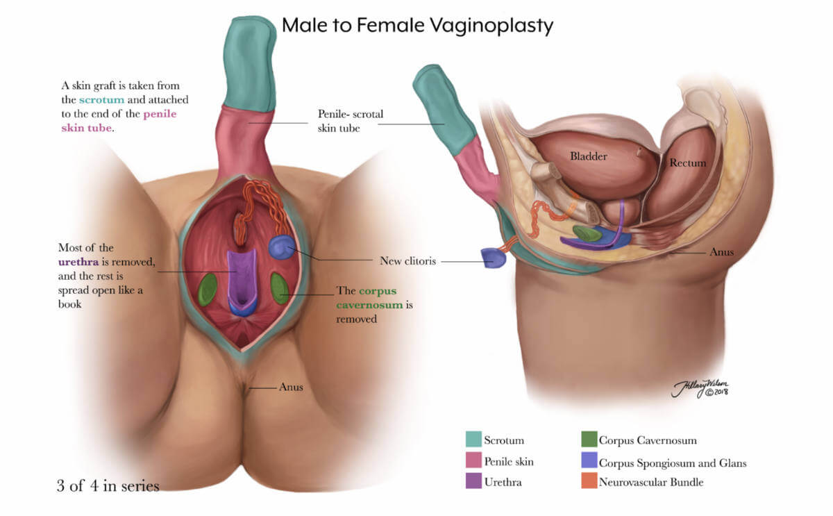 annotated illustration of male to female vaginoplasty, part 3