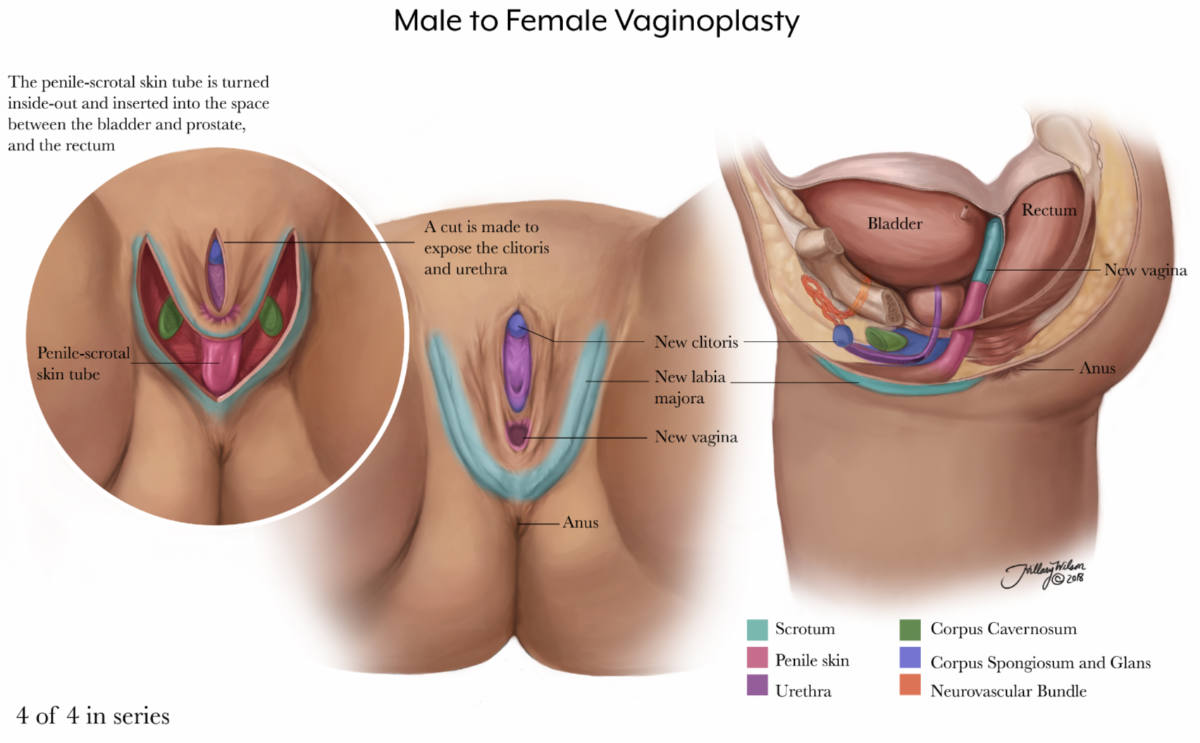 annotated illustration of male to female vaginoplasty, part 4