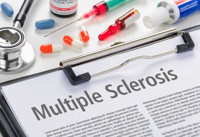 An article about multiple sclerosis