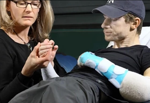 Hand transplant patient