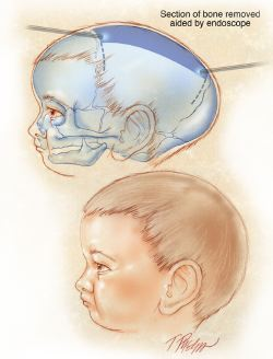 Craniosynostosis surgery illustration