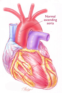 aortic aneurysm surgery, Human Body