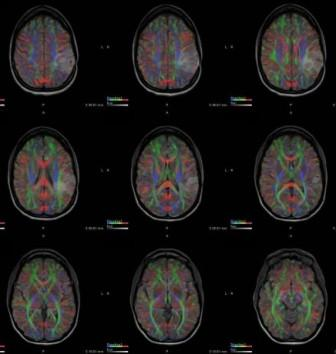 metastatic brain tumor scans