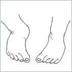 Illustration showing feet turned inward