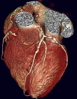 256-CT image of whole heart in patient showing hardened arteries with cholesteral and plaque buildup.