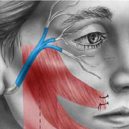 Diagram of transplanted facial nerves