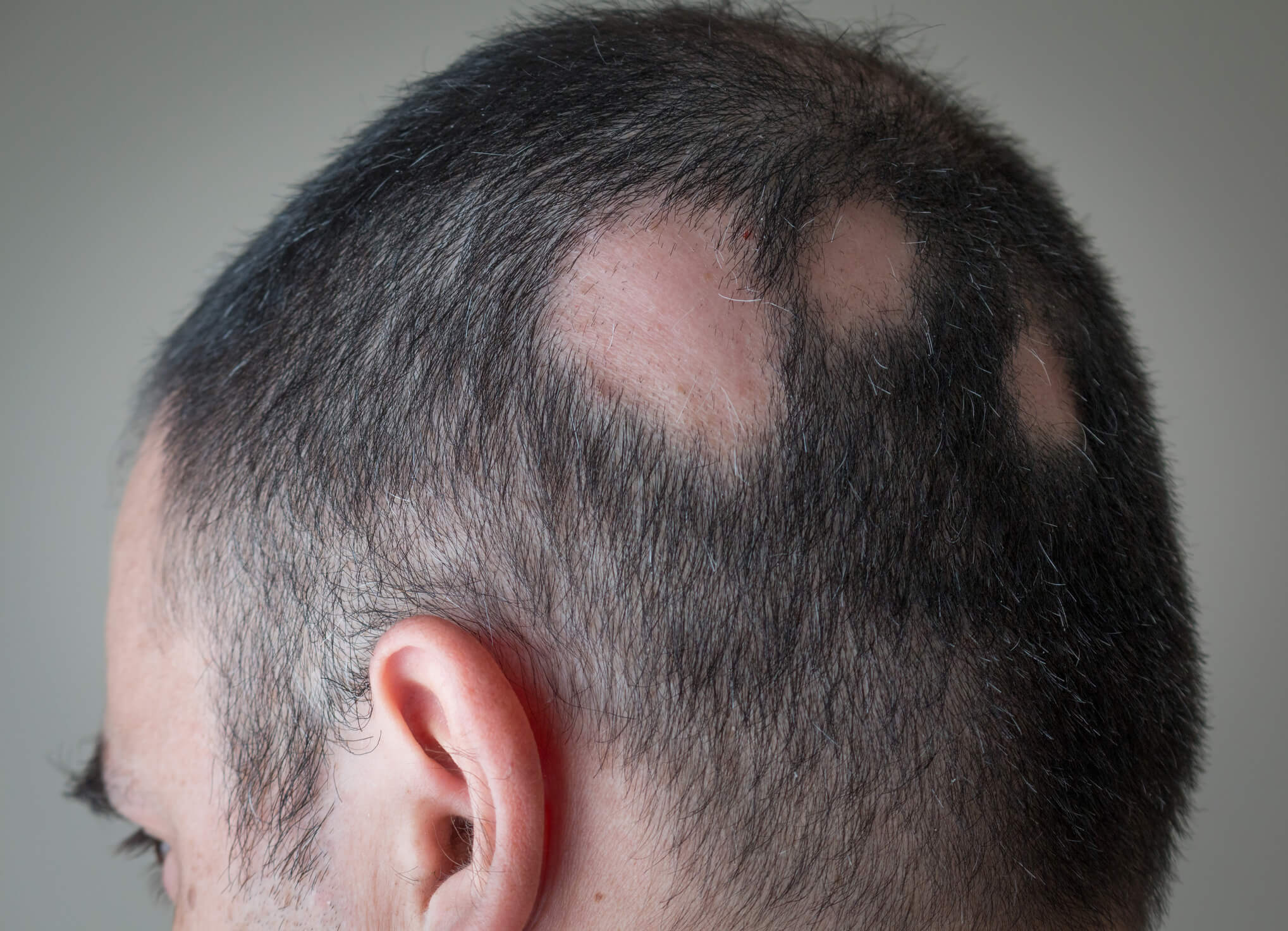A head of hair with missing hair patches
