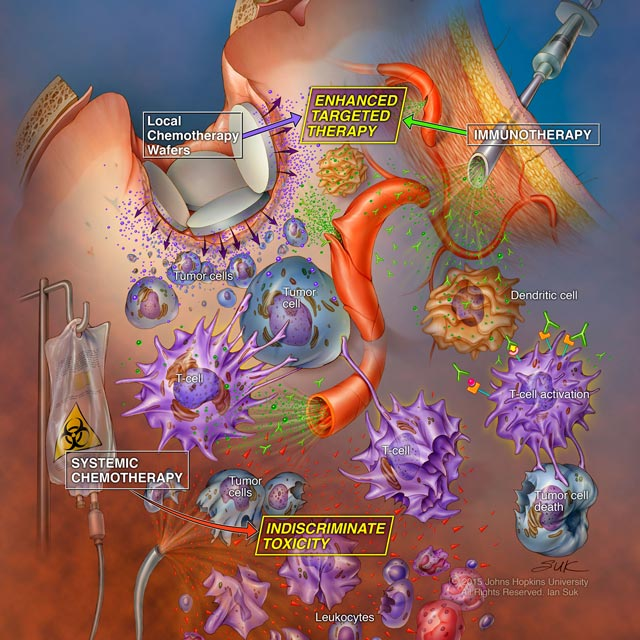 Incorporating Immunotherapy into the Standard of Care