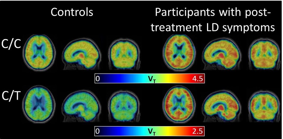 New Scan Technique Reveals Brain Inflammation Associated with Post